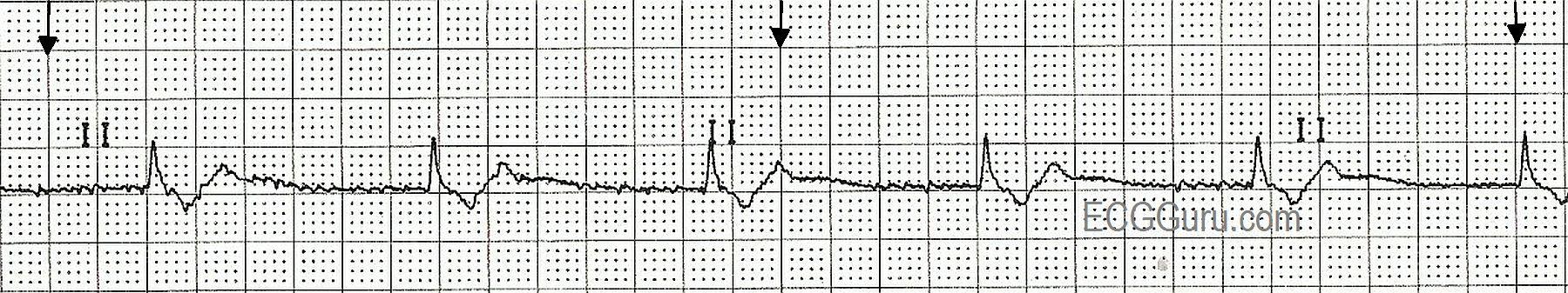 ECG Basics: Junctional Rhythm | ECG Guru - Instructor ...