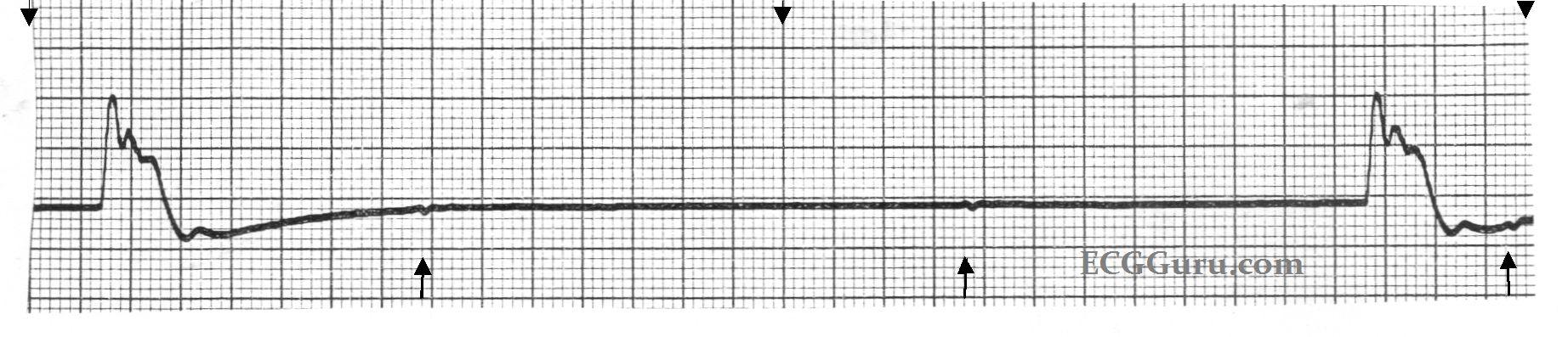 ECG Basics: Idioventricular Escape Rhythm | ECG Guru ...