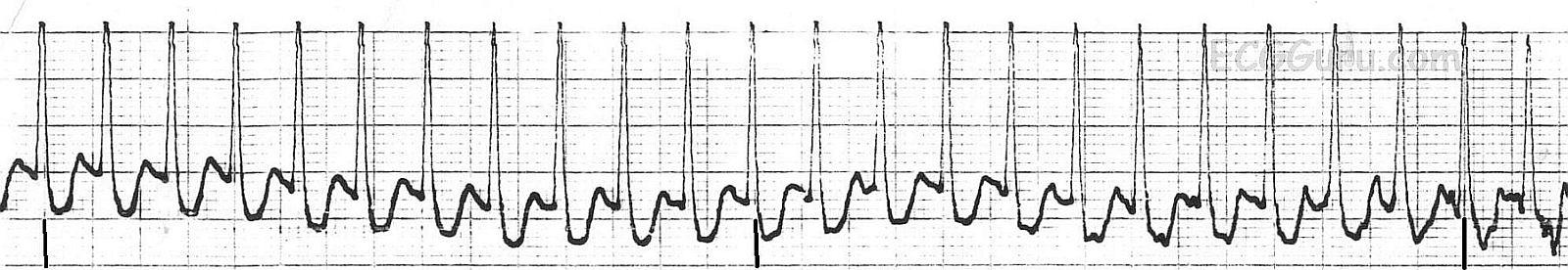 ECG Basics: Paroxysmal Supraventricular Tachycardia ...