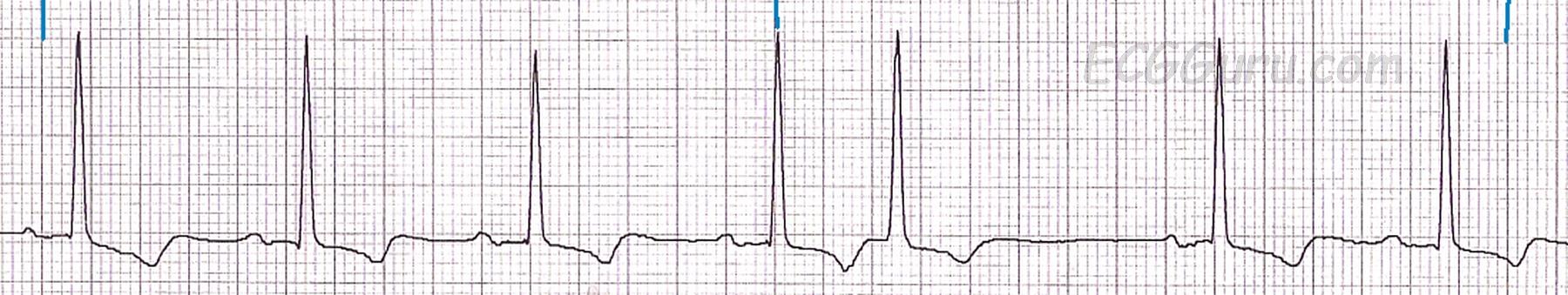 ECG Basics: Sinus Rhythm With A Premature Beat | ECG Guru ...