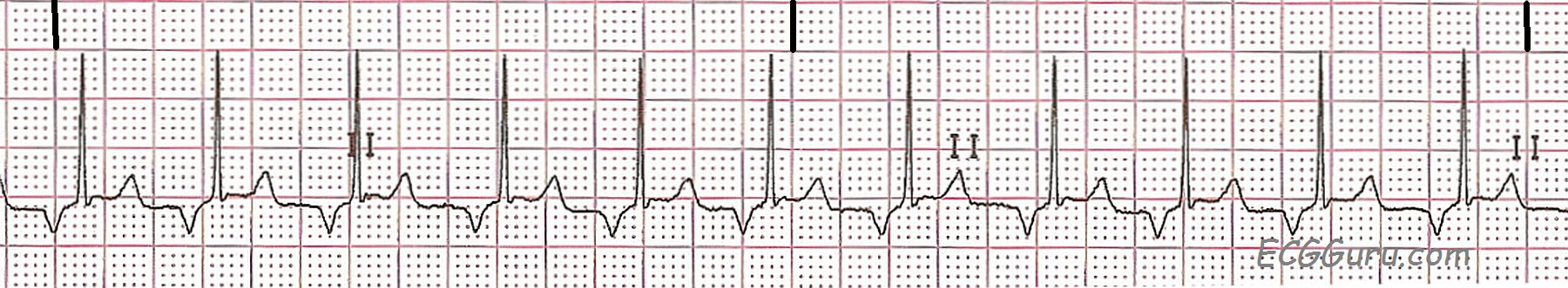ECG Basics: Retrograde P Waves | ECG Guru - Instructor ...