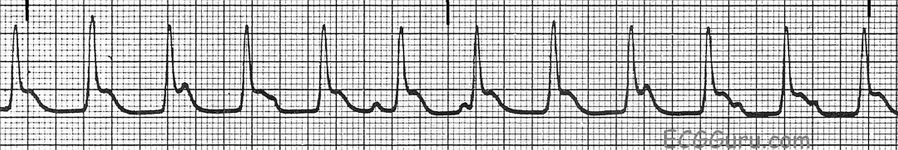 This strip shows a junctional rhythm at a rate of 110 beats per minute. The  QRS complexes are slightly wide at .10 seconds (100 ms), and they are  within the ...