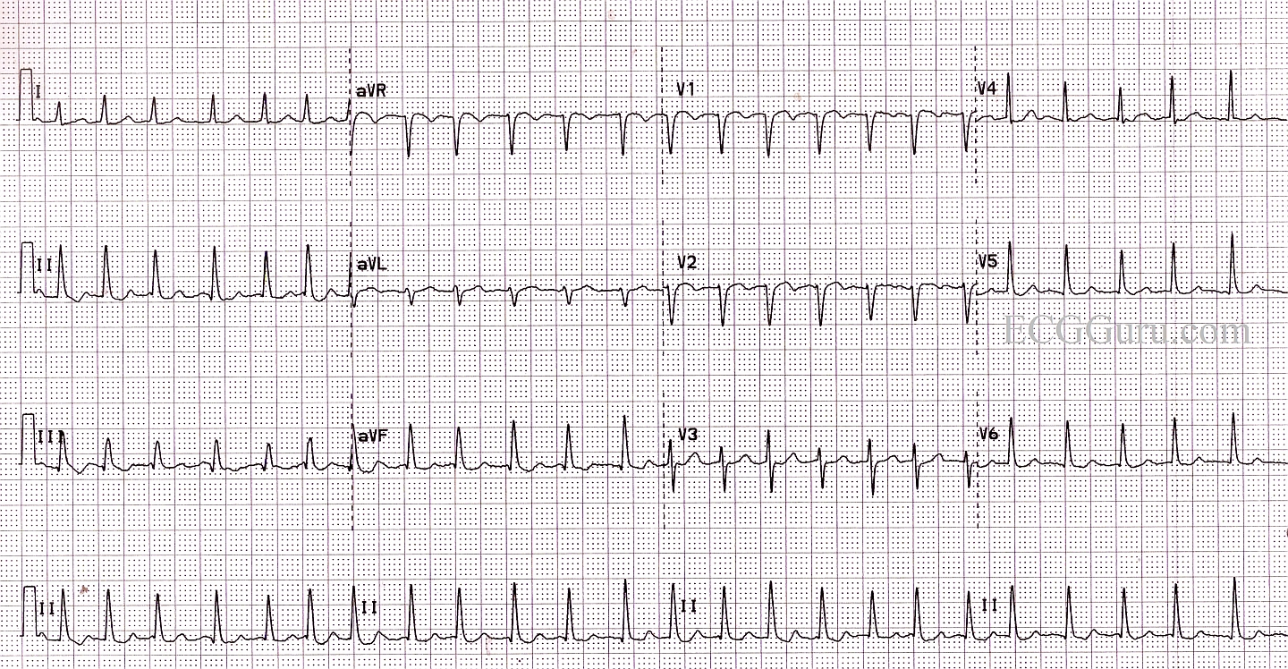 Atrial Fibrillation With A Rapid Ventricular Response