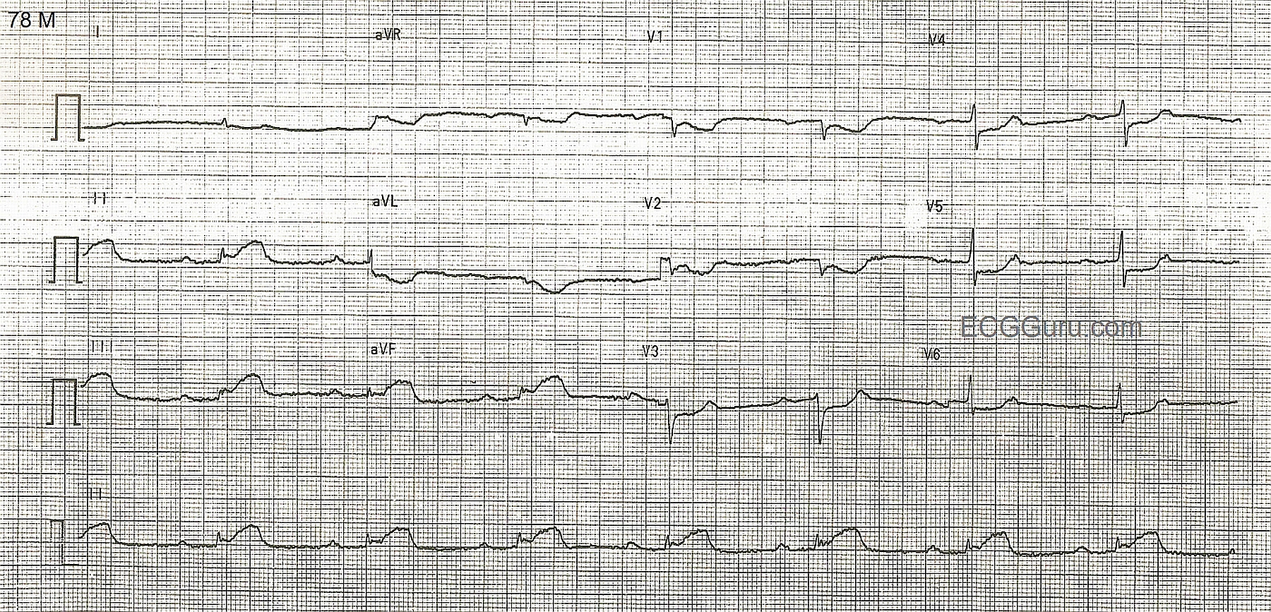 Inferior Wall M.I. With Sinus Bradycardia and First-degree ...