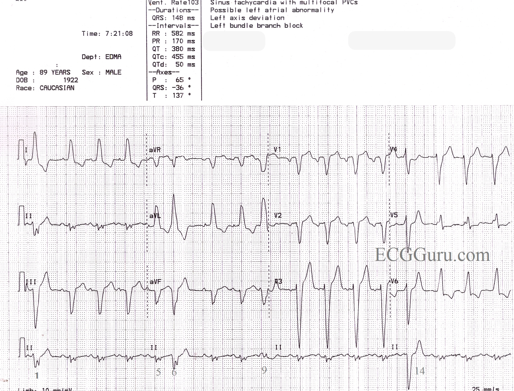 sinus rhythm with left bundle branch block  pvcs  and