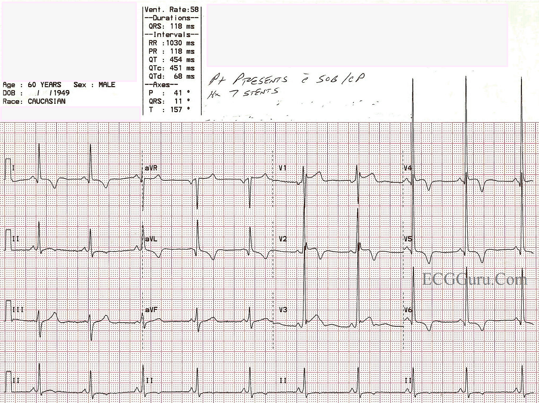 Acute M I In A Patient With Left Ventricular Hypertrophy