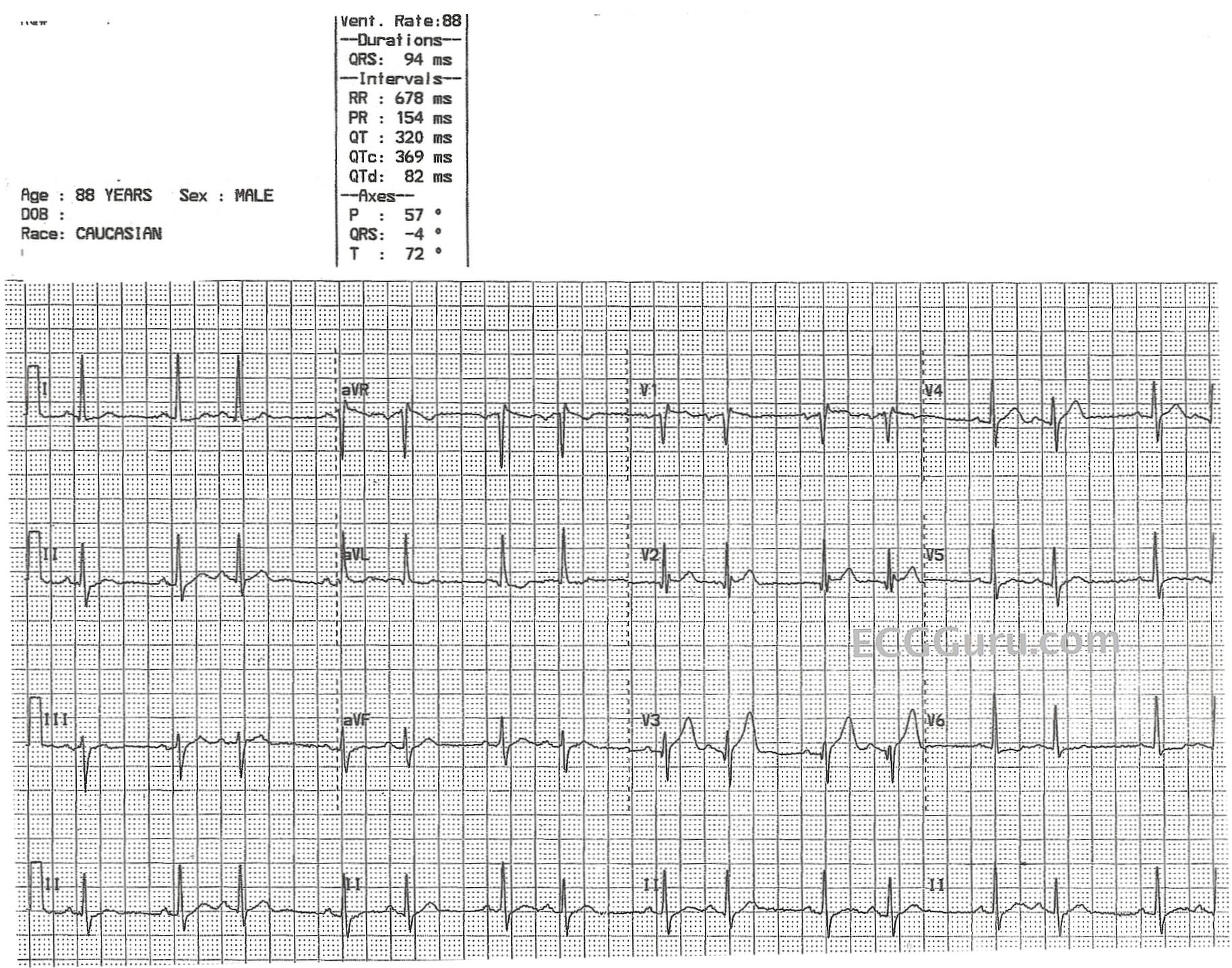 Sinus Rhythm With Atrial Bigeminy – ECG quest