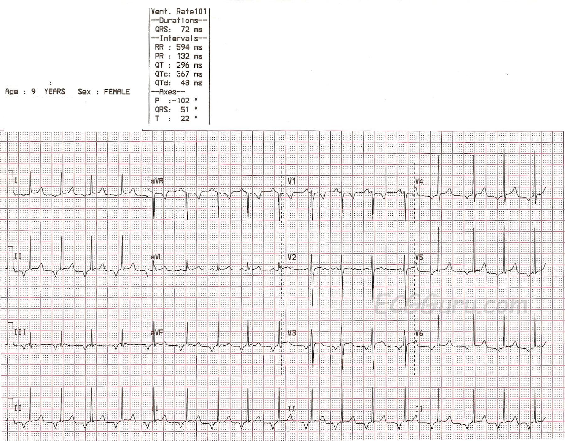 Pediatric ECG With Junctional Rhythm | ECG Guru ...
