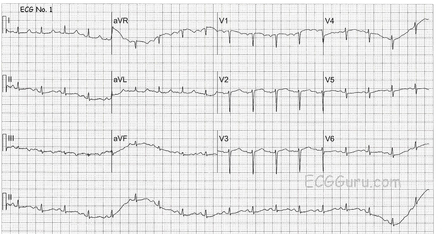 Ecg Challenge Cardiac Arrest In A 41 Year Old Woman Ecg
