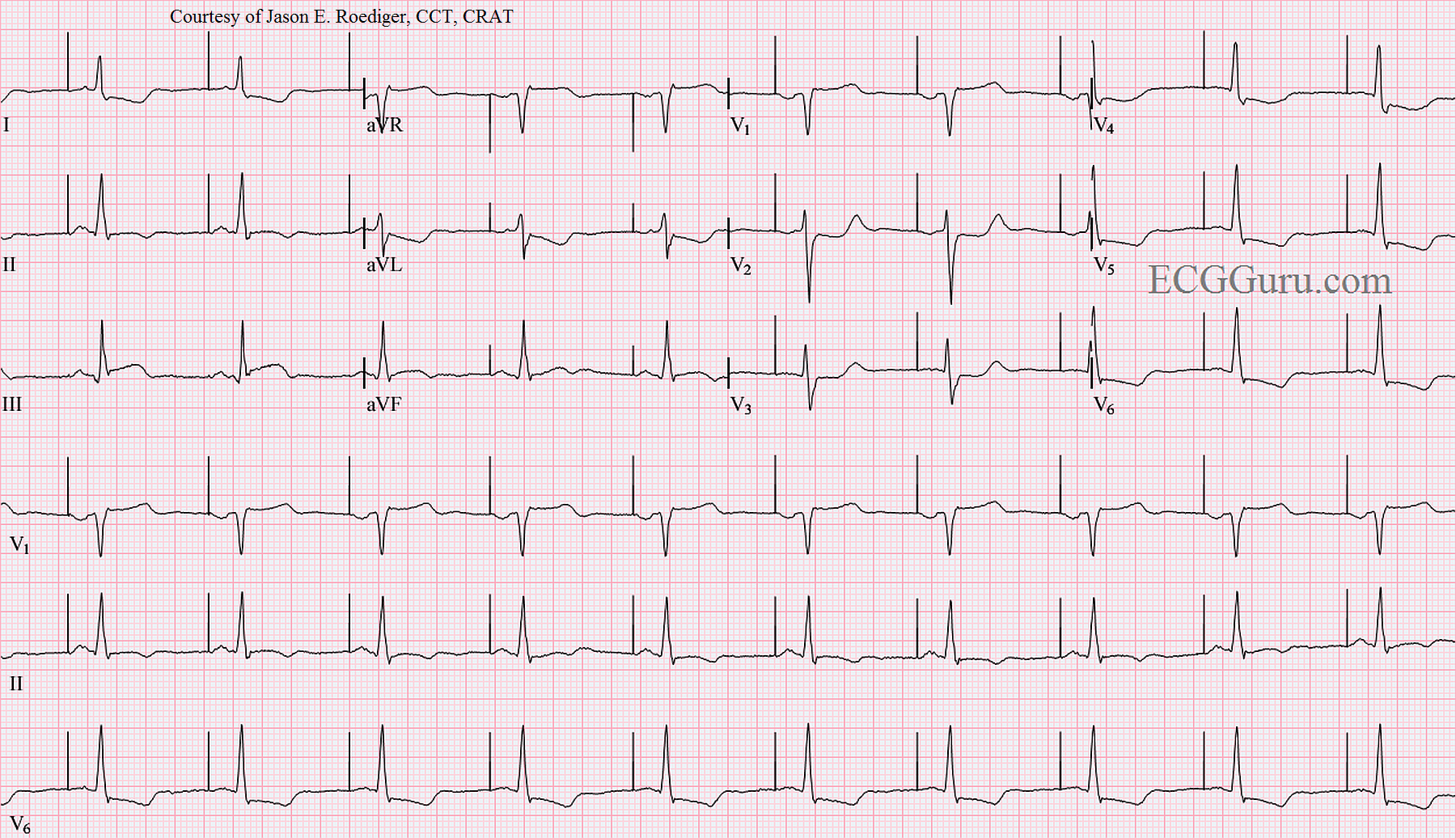 Atrial Pacing In A Patient With Acute Inferior Wall M I