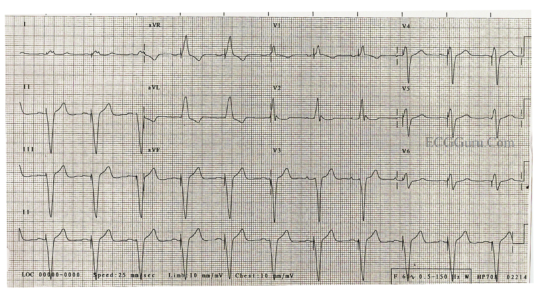 Pacemaker Rhythm Right Ventricular Pacing Triggered By