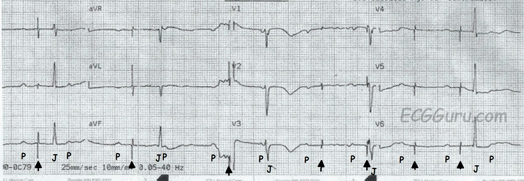 ecg basics  pacemaker failure to capture