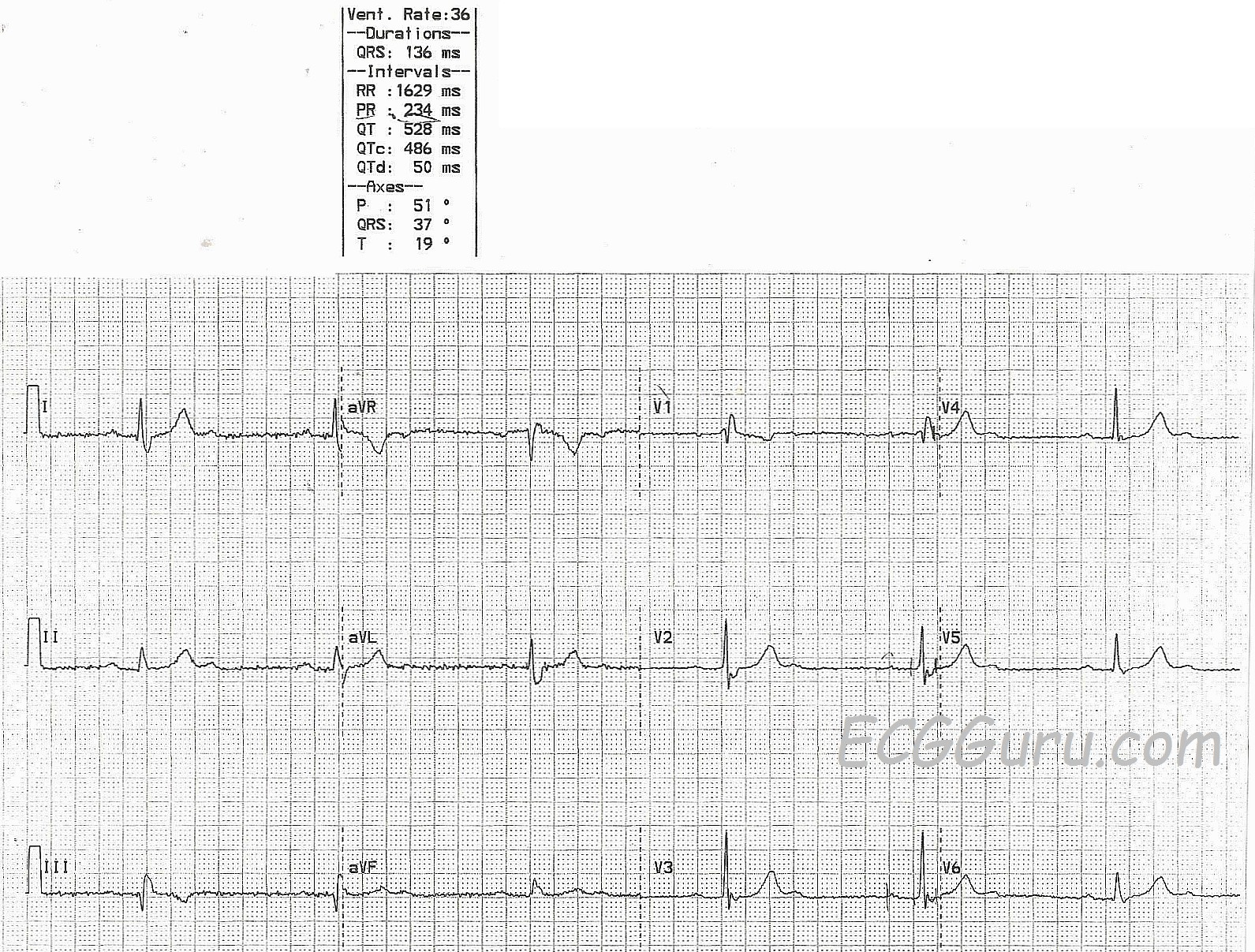This Interesting ECG Is A Great One For Your More Advanced Students Who Are  Ready To Discuss The Anatomical And Physiological Differences Between The  AV ...  2 1 Degree