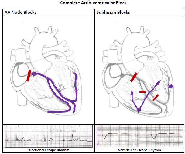 Av block ecg guru instructor resources two types of complete heart block ccuart Image collections
