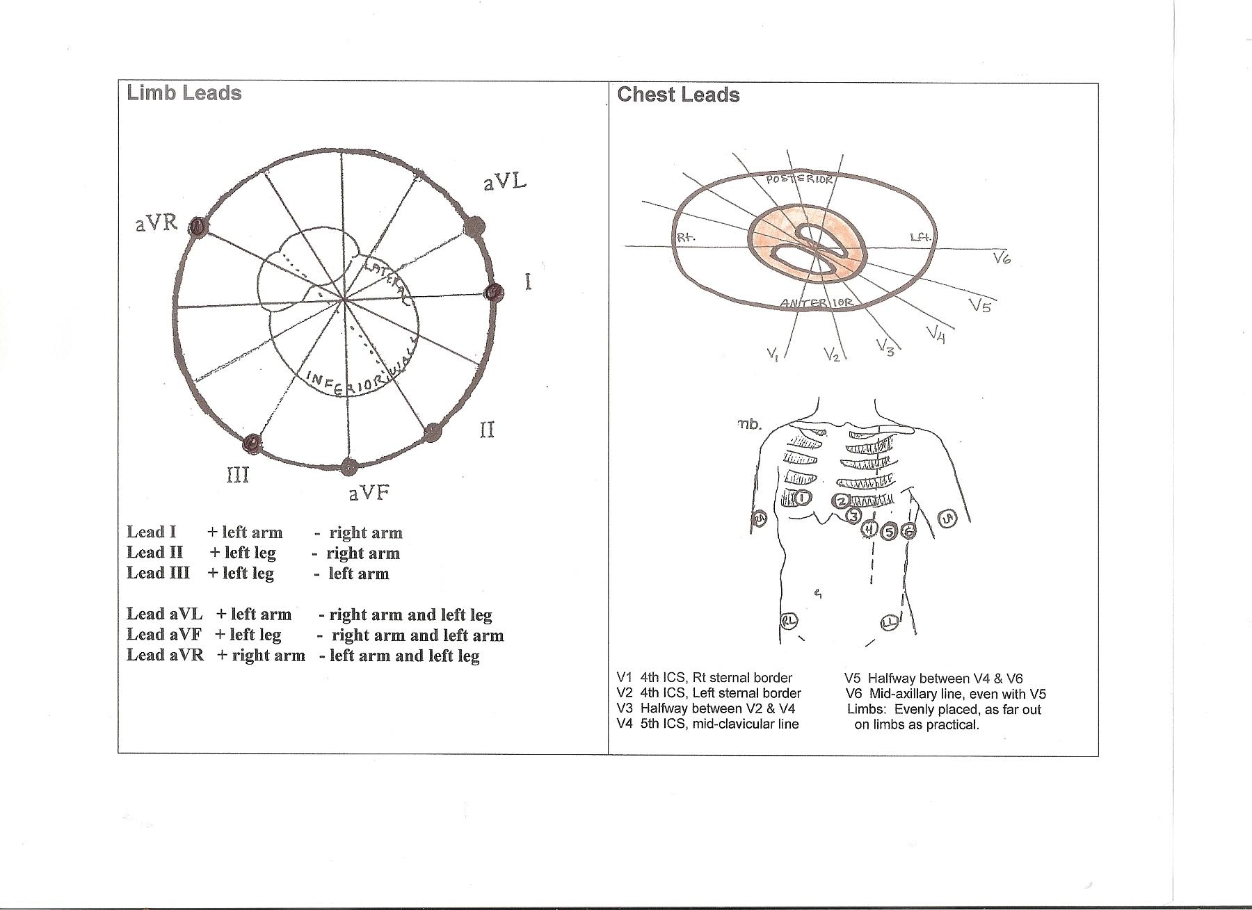 diagram of frontal  u0026 horizontal plane leads