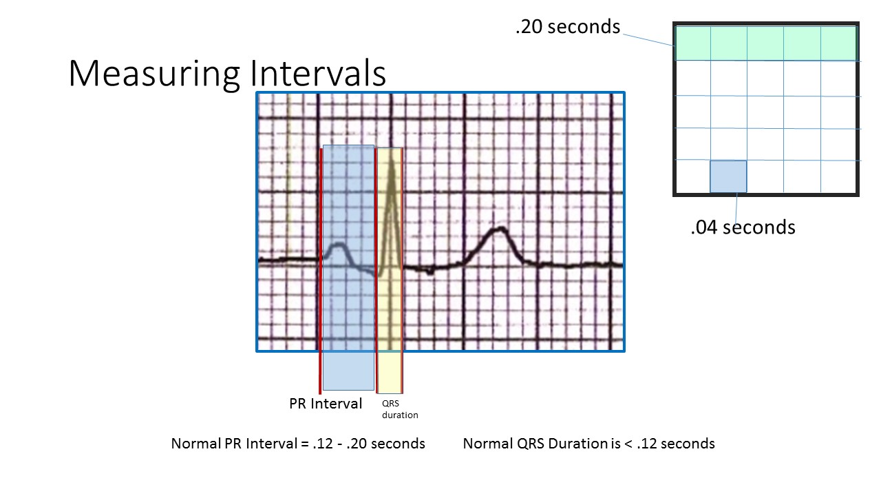 How to Measure PR Interval