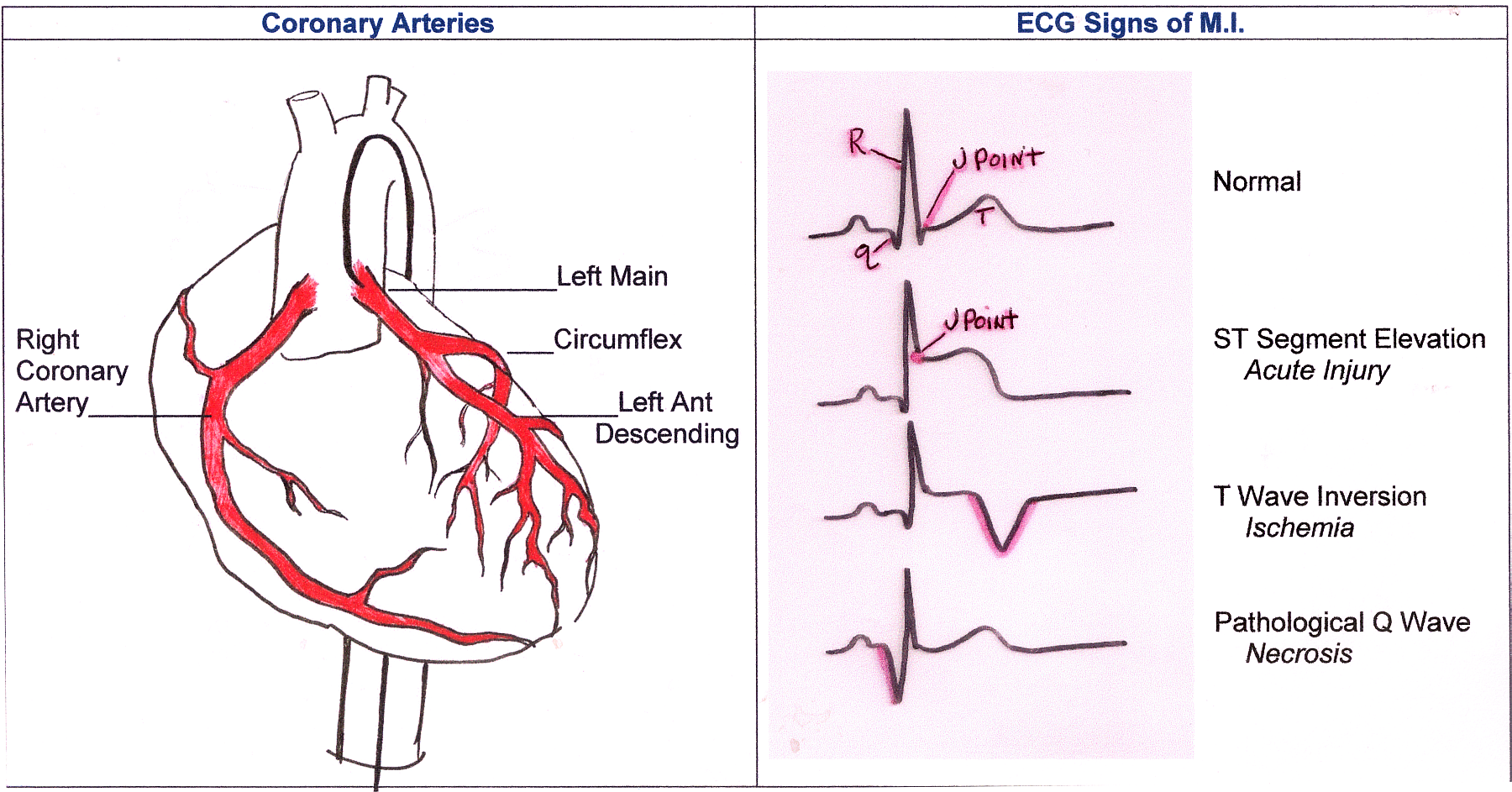 Coronary arteries and ecg signs of mi cor arteries and mi changes landscapeg pooptronica Images