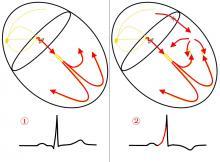 Accessory Pathway Illustration, WPW Illustration, Wolff-Parkinson-White