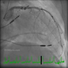 Angiogram of Left Coronary Artery With Pacemaker and Swan Ganz Catheter