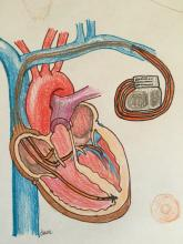 Bi-ventricular pacemaker illustration