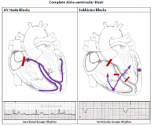 Two Types of Complete Heart Block