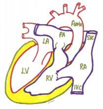 Dextrocardia situs inversus