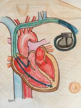 Pacemaker, Illustration