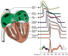 ECG Waveform, Action Potential