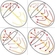 Antidromic SVT Conduction Illustration