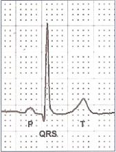 P QRS T, Cardiac Cycle on ECGf Labelled. FREE ILLUSTRATION