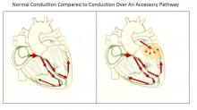 Normal Conduction Compared To Conduction Over An Accessory Pathway