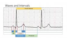 Waves and Intervals, Measuring ECG Waves and Intervals