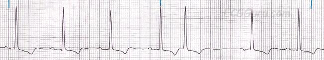 Premature Junctional Contraction P Wave Premature junctional c...