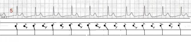 Junctional tachycardia | ECG Guru - Instructor Resources