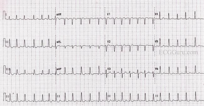 Atrial Flutter With Rapid Ventricular Response Treatment