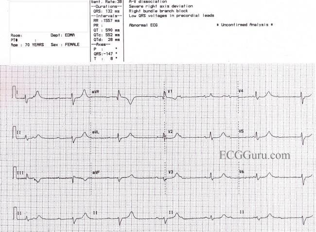 Long QT Syndrome | ECG Guru - Instructor Resources