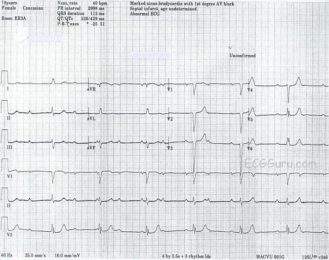 Complete AV Block With Junctional Escape Rhythm | ECG Guru ...