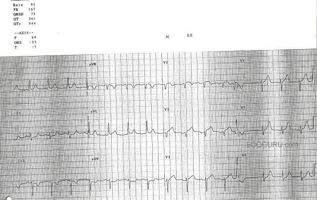 Anterior Wall MI with Subtle ST Changes, STEMI