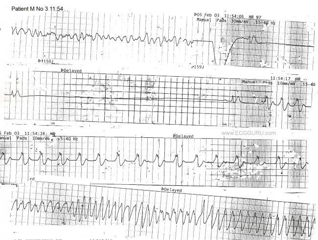 Cardiac Arrest, Rhythm Strip, V Tach, Torsades de pointes, Idioventricular Rhythm