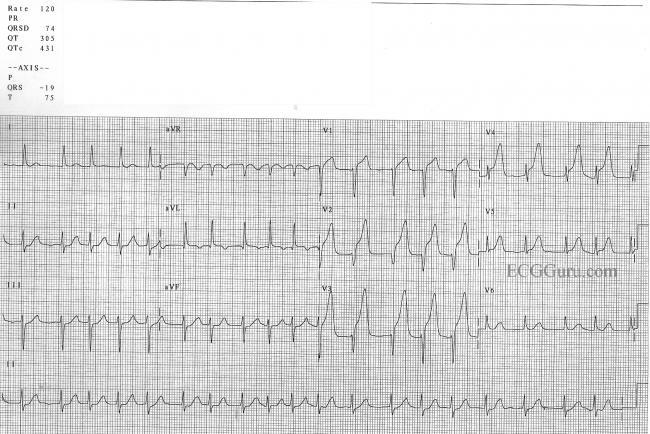 anterior wall m i  with atrial fibrillation