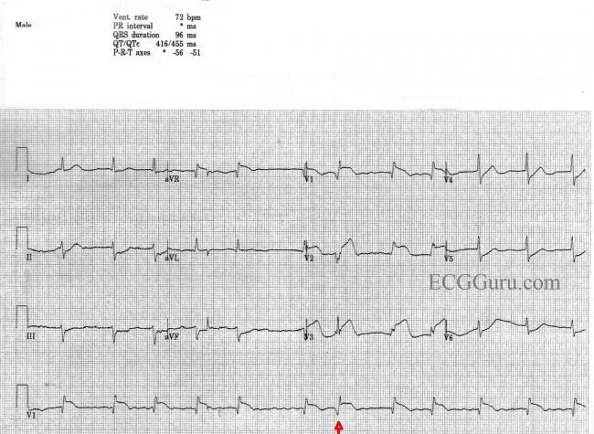 Anterior-Septal M I  With Atrial Fibrillation | ECG Guru