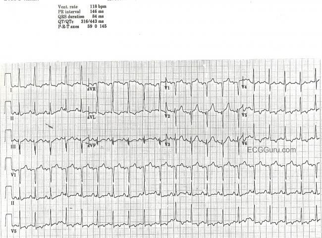 Coronary Artery Disease Ecg Guru Instructor Resources