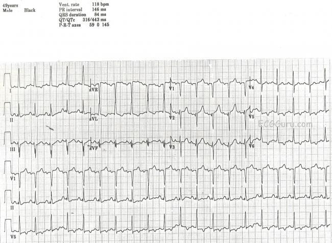 Sinus tachycardia | ECG Guru - Instructor Resources