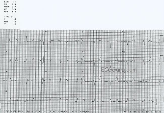 Electrolyte Effects  sc 1 st  ECG Guru & Peaked T waves | ECG Guru - Instructor Resources