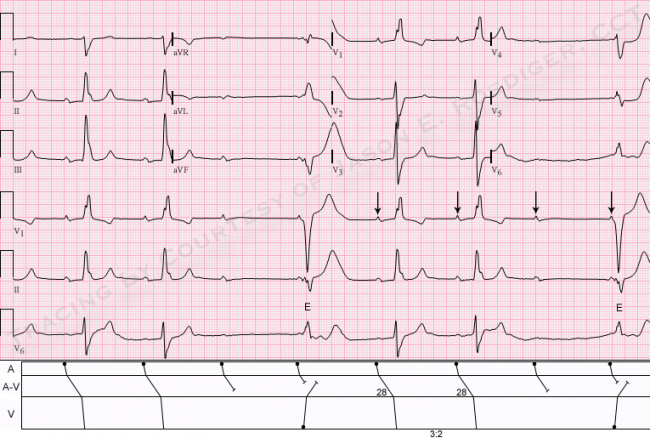 Jason S Blog Ecg Challenge For The Month Of June 2013