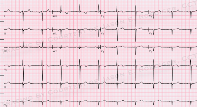 ... ecg challenge for the month of june 2014 sat 05 31 2014 11 00 jer5150