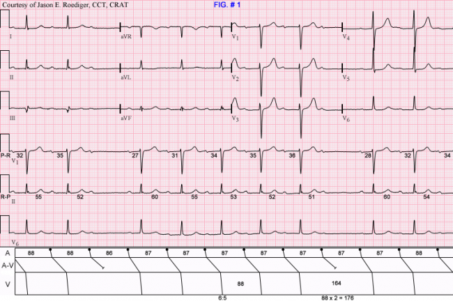 What does a normal ekg look like