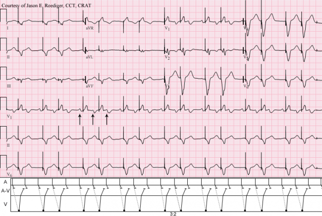 Biventricular pacemaker | ECG Guru - Instructor Resources