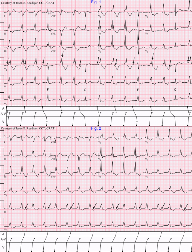 Kidney Disease Case Study moreover When Should You See A Cardiologist furthermore Lesson together with Hqmeded Ecg blogspot together with Copdchronic Airflow Limitation. on pacemaker patient teaching