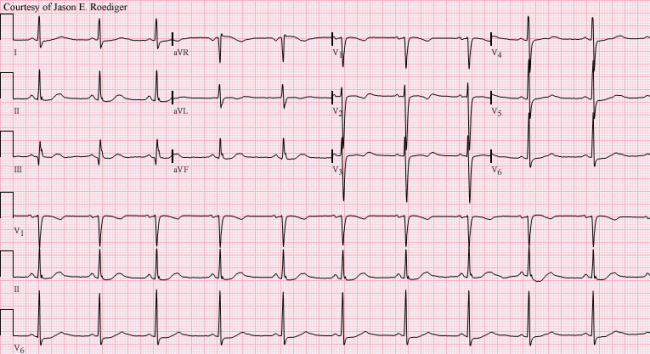 Very ekg strip of atrial bradycardia just
